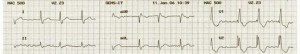 medical writing ecg